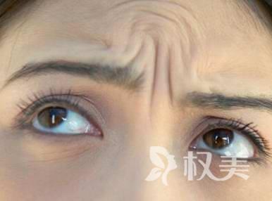 激光去除川字紋的效果怎么樣呢 你的眉頭還是緊皺嗎