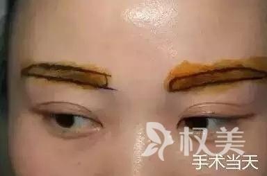 眉毛种植画眉不再属于我 真真假假难以分辨