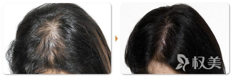 头发烧伤还能进行头发的种植吗 毛囊坏死的原因有哪些呢