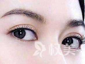 開外眼角會留疤嗎 避免疤痕出現你需要這樣做