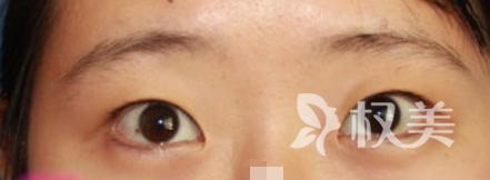 """没做全切双眼皮手术之前 我就是""""丑小鸭"""""""