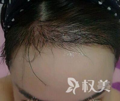 发际线种植术 挽救的不只是我的发际线 还有人生