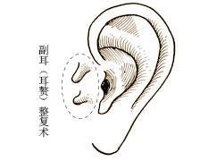 副耳出现原因有哪些呢 宝妈宝爸们不妨来看看
