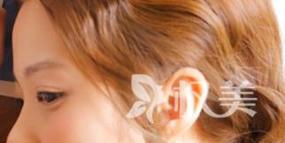 怎么样才算的上一个标准的耳朵呢 耳廓畸形是否会影响到听力呢
