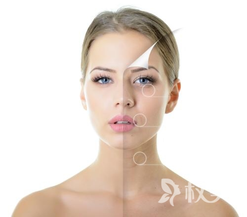 射频除皱是不是安全的  紧致皮肤 刺激胶原蛋白增生