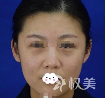 女人要为自己而活 记录我做面部线雕提升过程