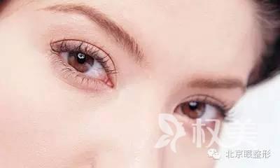 北京做双眼皮哪个季节恢复快 埋线双眼皮成功率高吗