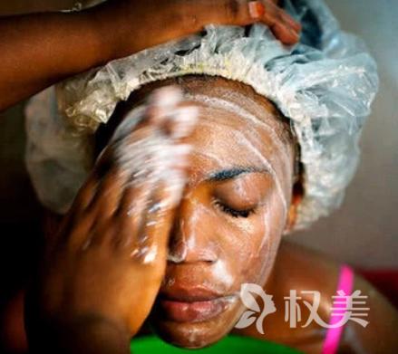非洲人为了让自己皮肤变白 漂白肤色比整容还疯狂
