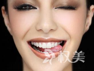 牙齿矫正器该怎么样选择呢 牙齿矫正焕发光彩