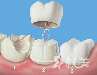 全瓷烤瓷牙的寿命是永久的吗 你做好了术后保养吗