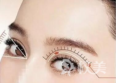 郴州割双眼皮的医院哪家好 切开双眼皮会留疤吗