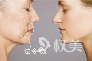脸上法令纹越来越重怎么办 激光去法令纹微创治疗创伤小恢复快