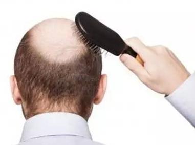 脱发性毛囊炎怎么治疗 它和斑秃有哪些方面的区别