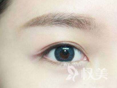 乌海割双眼皮医院排名 埋线双眼皮能维持多久