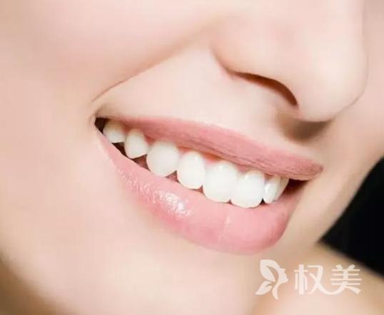 柠檬能美白牙齿吗 冷光美白能解决牙齿哪些问题