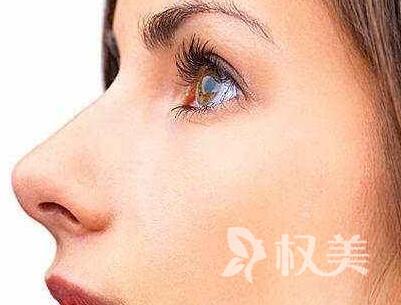 鼻小柱延长后多久可以进行运动 了解这些对你有帮助