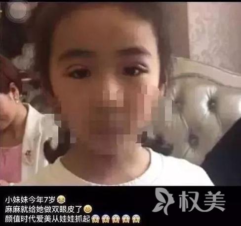 7岁的小女孩割双眼皮 你怎么看待未成年人整容