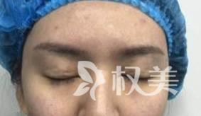 双眼皮修复拯救了我失败的双眼皮术 现在的我美的更加自然了