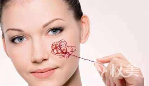 光子嫩肤去红血丝效果 专家提醒效果虽好但有几类人不适合做
