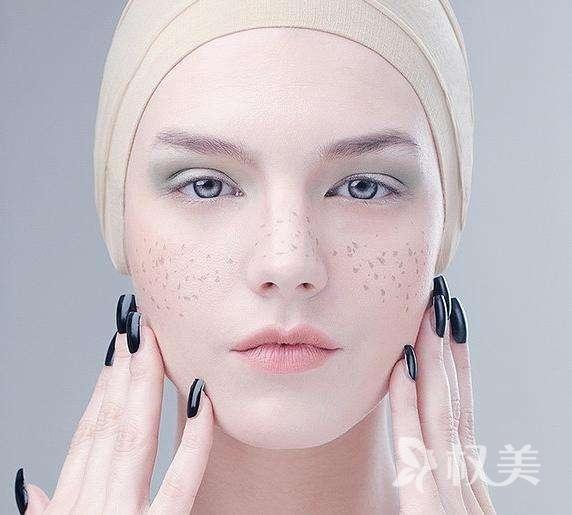 e光美容祛斑优势 斑斑点点一扫空