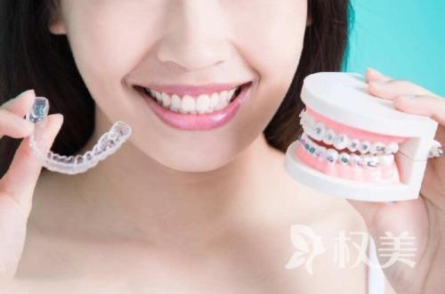 牙齿矫正要多少钱 这些因素决定价格