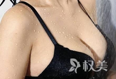 乳房下垂松软怎么办 乳房矫正解决你的麻烦