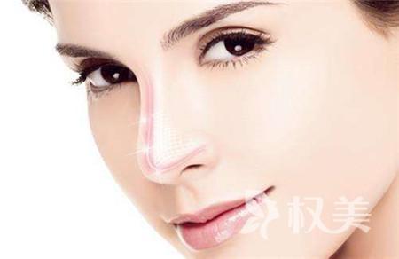 鼻尖整形手术效果好不好  鼻部整体曲线趋于完美