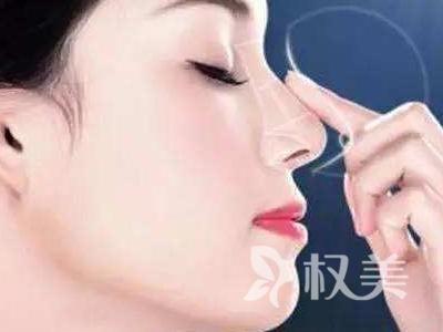 鼻综合整形术 全方位塑造 更显精致