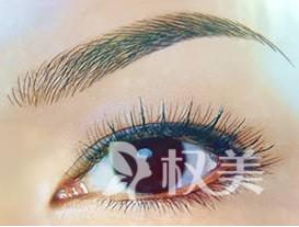 開外眼角會留疤嗎 大眼睛讓你動人加倍