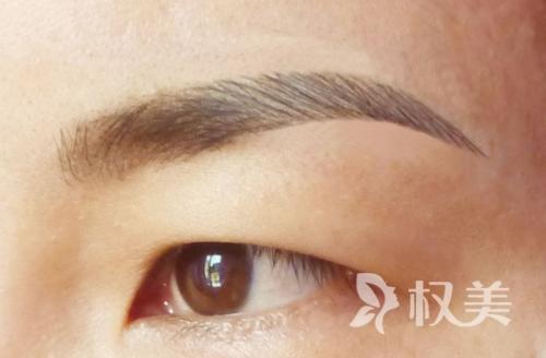 眉毛种植效果如何样 浓密眉毛抹去麻烦
