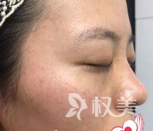 美白肌肤又能淡化斑点 我的皮肤就是用皮秒祛斑治疗好的