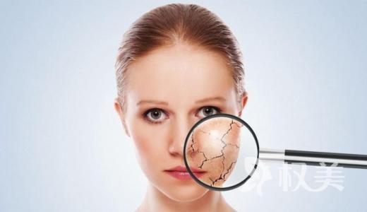 雀斑黄褐斑区别在哪 光子嫩肤祛斑让你符合好皮肤标准