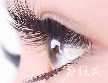 北京頭發種植醫院排名 睫毛種植后還會再掉嗎