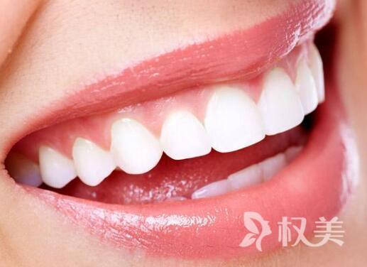 冷光美白牙齿视频 宿迁冷光美白牙齿多少钱