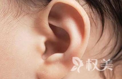 杯状耳矫正效果怎么样 消除你的困扰