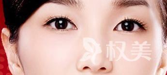 眼角纹除皱有哪些方法 激光去鱼尾纹是抗衰老不错的选择