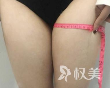 没想到吸脂瘦大腿效果这么好 纤细的小腿我也拥有啦
