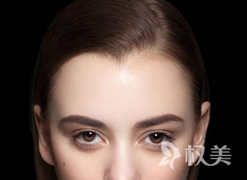 美人尖种植术 后无痕迹 皮肤更光滑