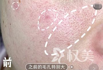 试过很多祛痘方法 点阵激光祛痘拯救了我的肌肤