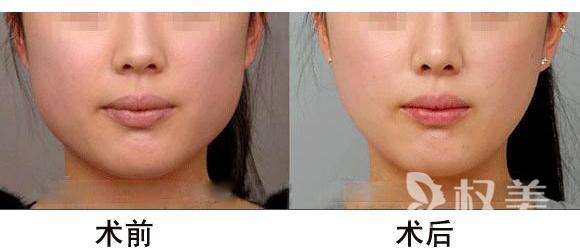 下颌骨整形需要多少钱 手术针对下颌缘升支过长和肥大下颌骨