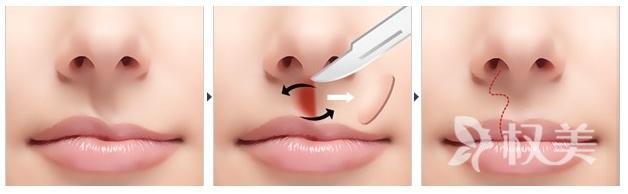 先天性唇腭裂怎么治疗 唇腭裂治愈的几率在显著提高