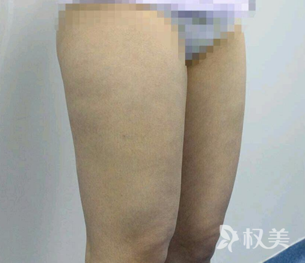 水动力吸脂瘦大腿  真正体验一次大象腿完美逆袭筷子腿