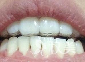 自从做了牙齿拥挤矫正 我也可以大胆放心的笑啦