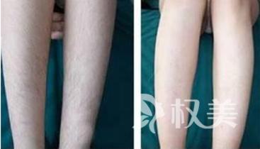 冰点激光除腿毛有副作用吗 温和地使毛囊自动失去活性