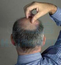 男人为什么会秃头呢 植发失败的后果有哪些