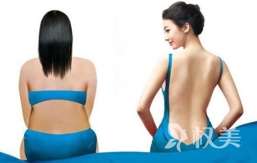 背部吸脂效果好吗 多少钱?恢复快吗