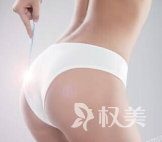 吸脂瘦臀效果如何 为女性塑造迷人翘臀