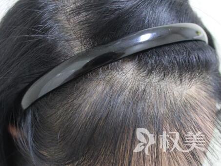 日本生发液效果怎么样 发际线种植适宜人群有哪些