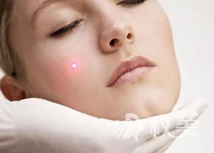 有效去除痤疮的好方法 射频治疗较激光损伤相对较小