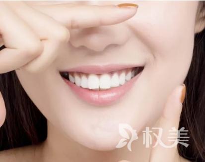 怎么样可以美白牙齿 去除多年来沉积在牙齿表面及深层色素